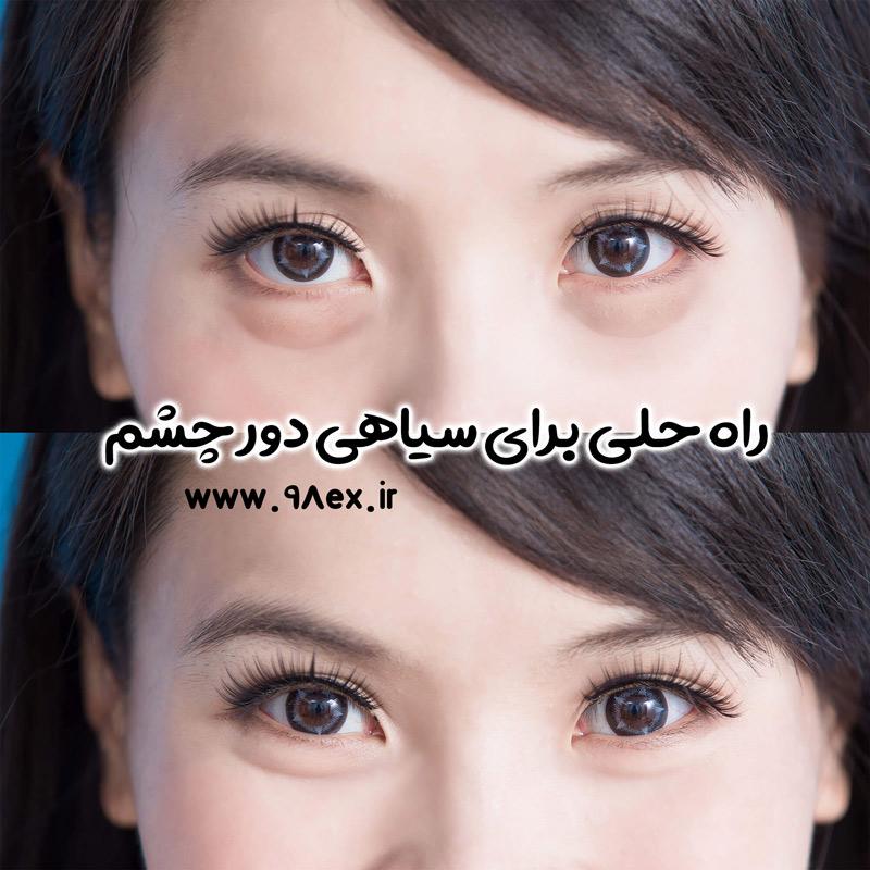 خرید-آنلاین-سیاهی-دور-چشم